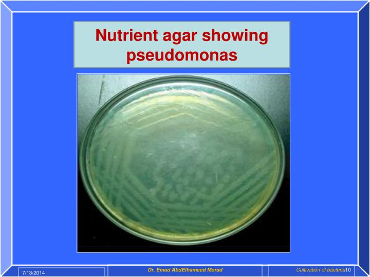 Nutrient agar showing pseudomonas