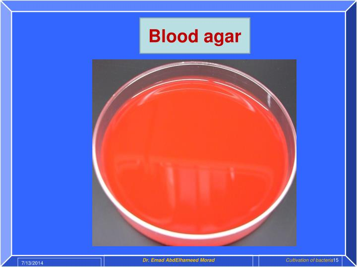 Blood agar