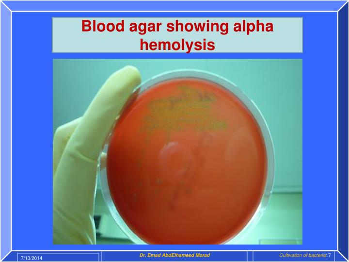 Blood agar showing alpha hemolysis