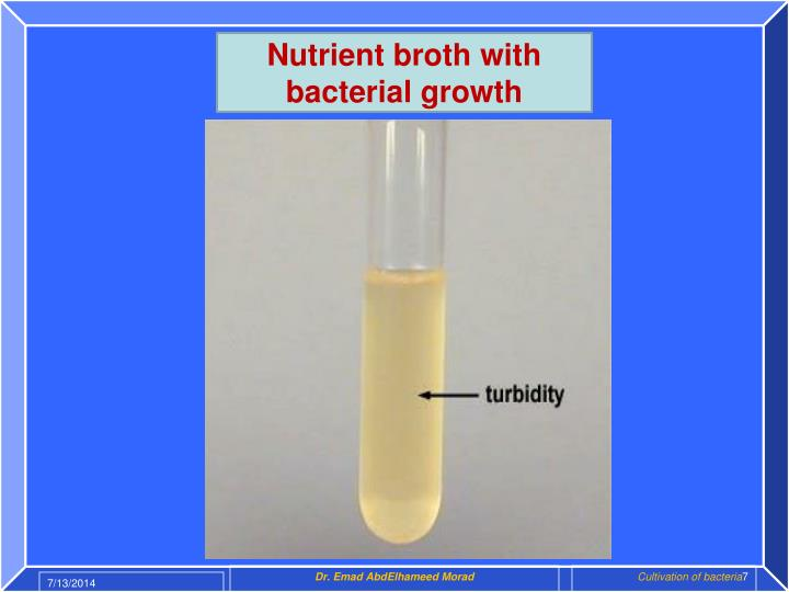Nutrient broth with bacterial growth