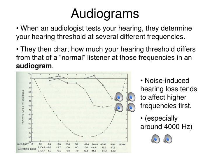 Audiograms