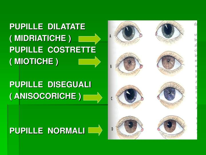 PUPILLE  DILATATE