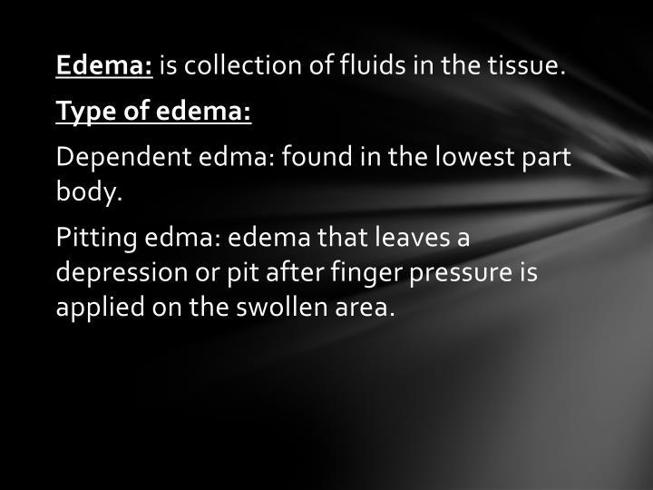 Edema: