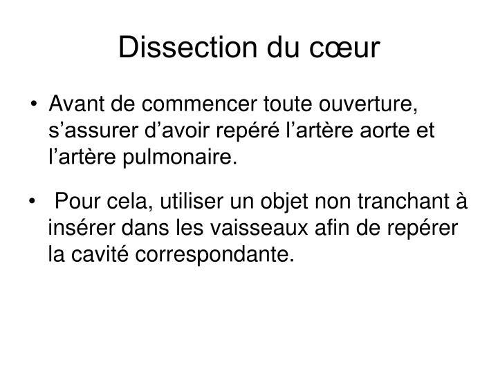 Dissection du cœur