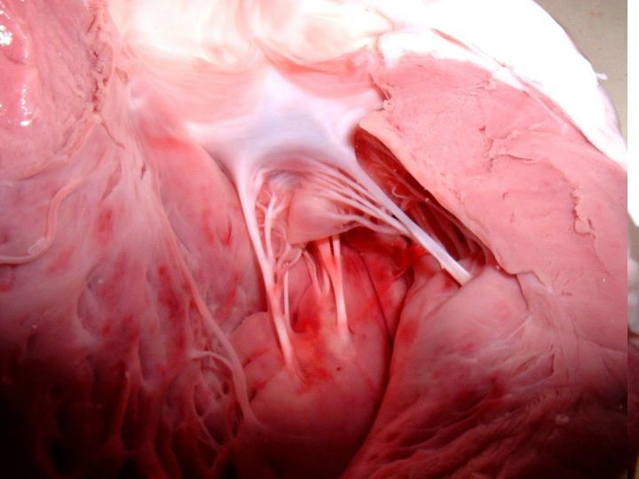 Aorte sectionnée longitudinalement