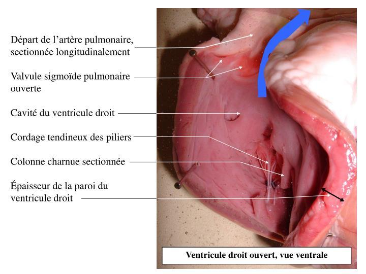 Départ de l'artère pulmonaire, sectionnée longitudinalement