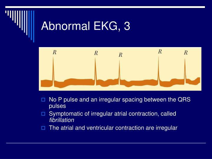 Abnormal EKG, 3