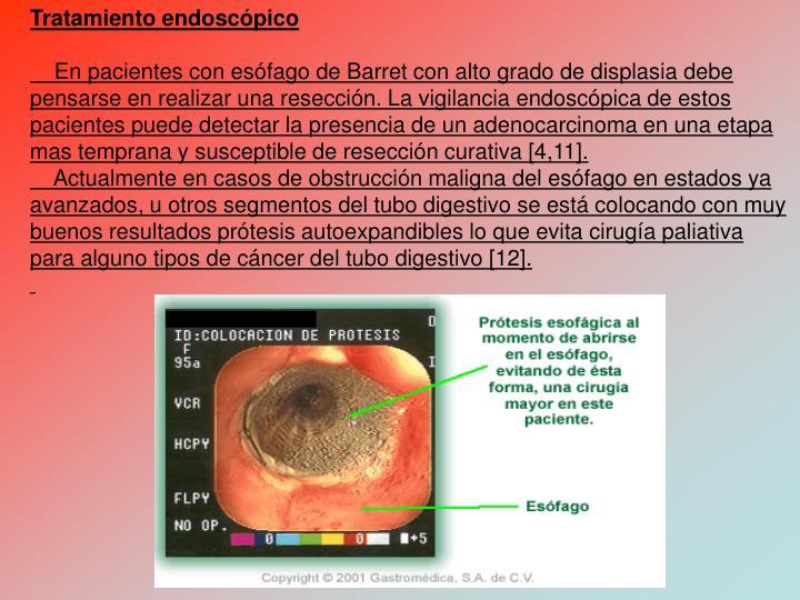 Tratamiento endoscpico