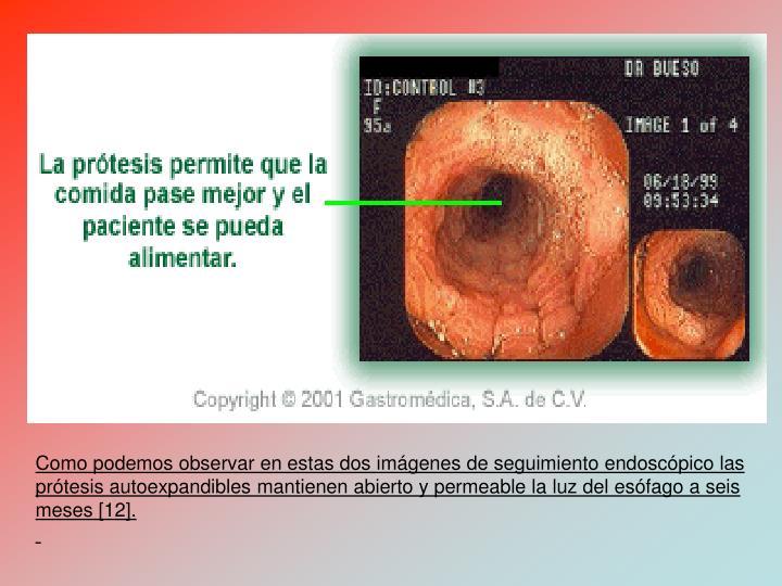 Como podemos observar en estas dos imgenes de seguimiento endoscpico las prtesis autoexpandibles mantienen abierto y permeable la luz del esfago a seis meses [12].