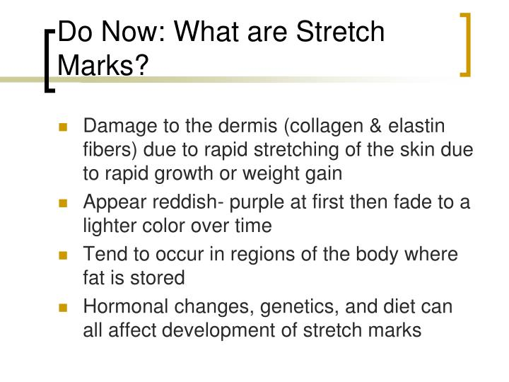 Do Now: What are Stretch Marks?