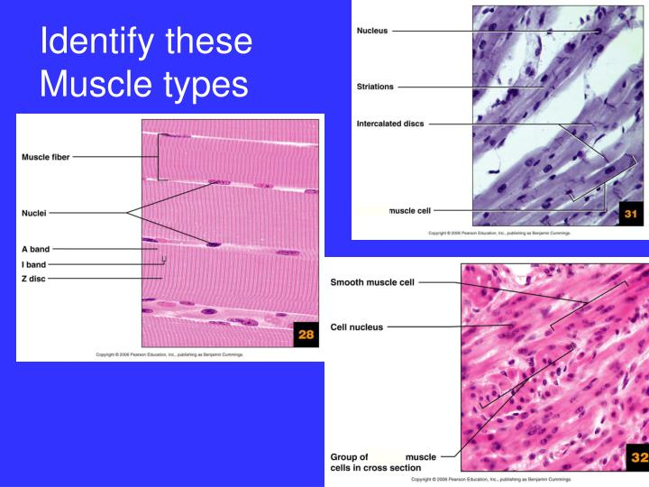 Identify these Muscle types