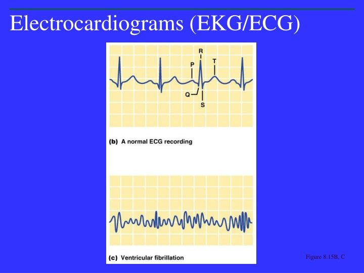 Electrocardiograms (EKG/ECG)
