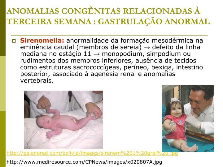 ANOMALIAS CONGÊNITAS RELACIONADAS À TERCEIRA SEMANA : GASTRULAÇÃO ANORMAL