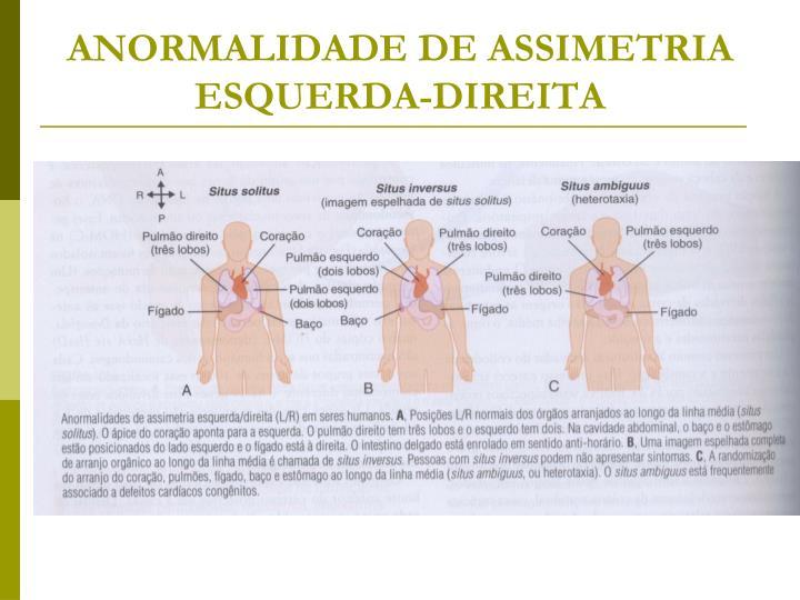 ANORMALIDADE DE ASSIMETRIA ESQUERDA-DIREITA