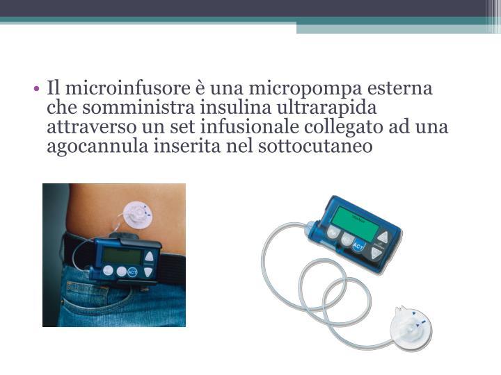 Il microinfusore è una micropompa esterna che somministra insulina ultrarapida attraverso un set infusionale collegato ad una agocannula inserita nel sottocutaneo