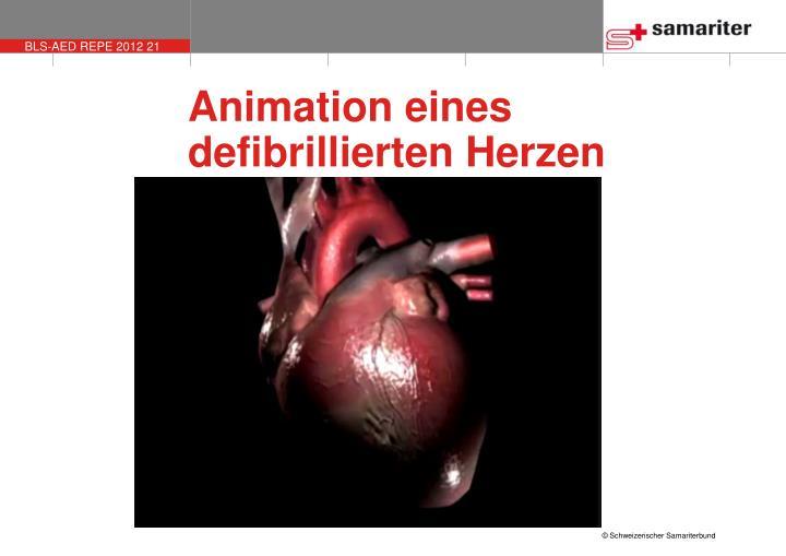 Animation eines defibrillierten Herzen