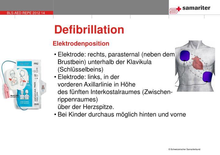 Defibrillation
