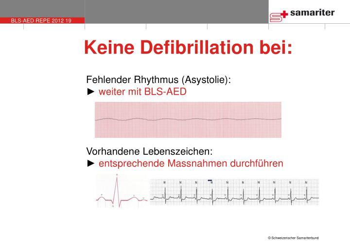 Keine Defibrillation bei: