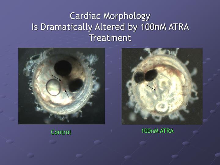 Cardiac Morphology