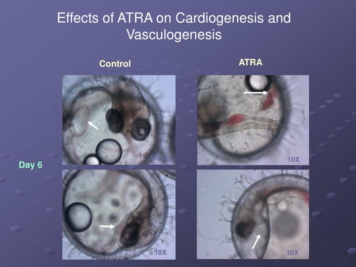 Effects of ATRA on Cardiogenesis and Vasculogenesis