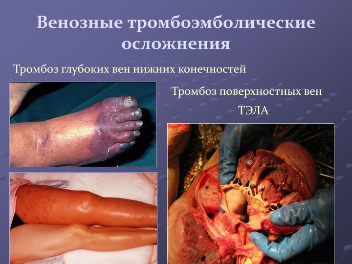 Венозные тромбоэмболические осложнения