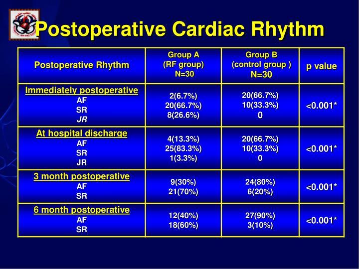 Postoperative Cardiac Rhythm