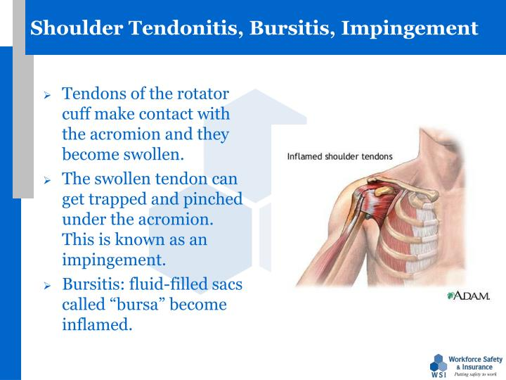 Shoulder Tendonitis, Bursitis, Impingement
