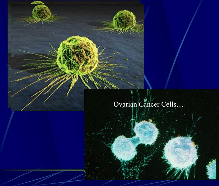 Ovarian Cancer Cells…