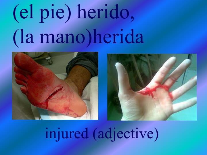 (el pie) herido,