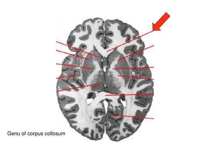 Genu of corpus collosum