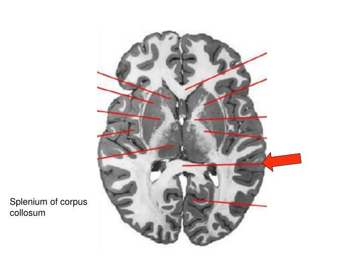Splenium of corpus collosum