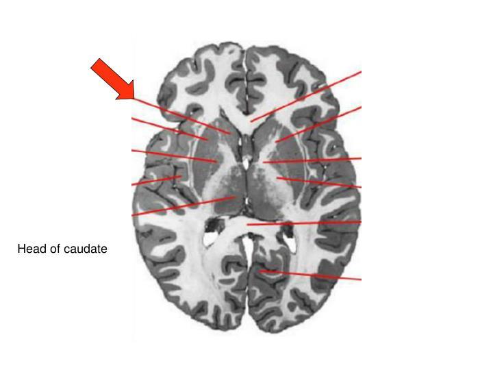 Head of caudate