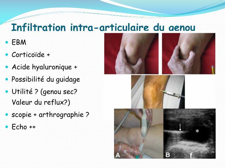Infiltration intra-articulaire du genou