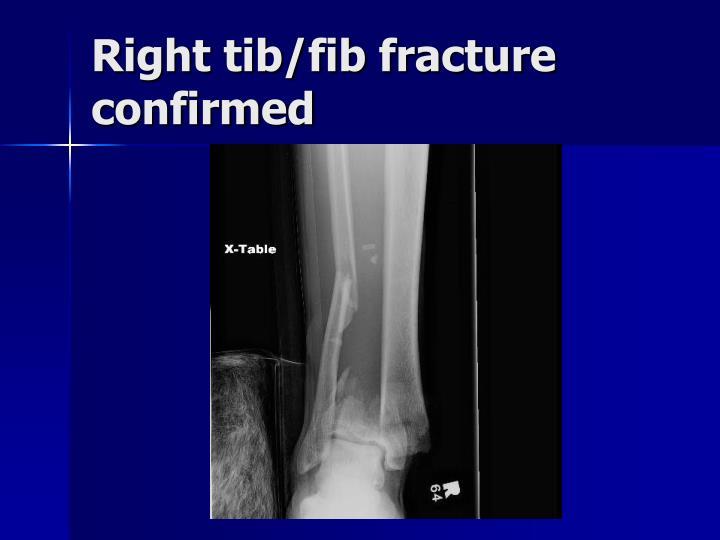 Right tib/fib fracture confirmed