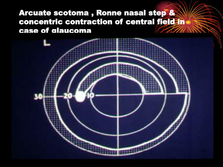 Arcuate scotoma , Ronne nasal step & concentric contraction of central field in case of glaucoma