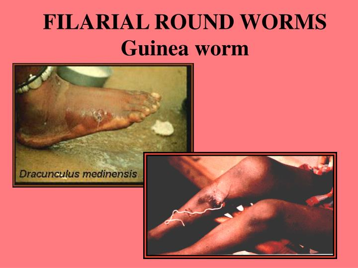 FILARIAL ROUND WORMS