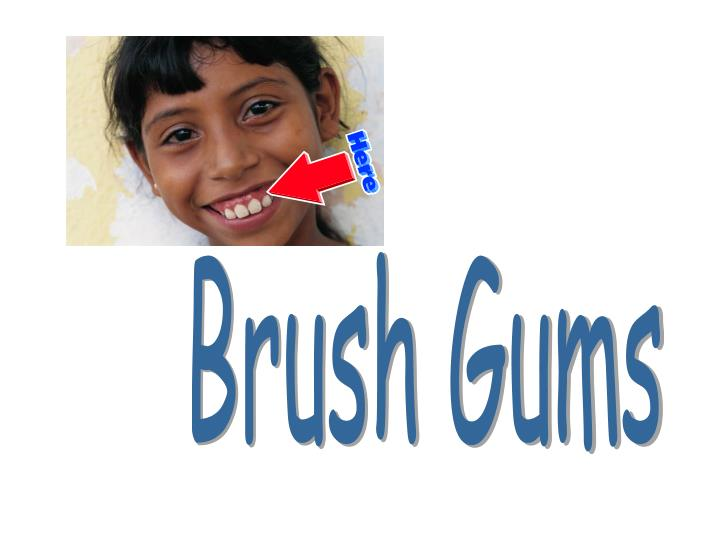 Brush Gums