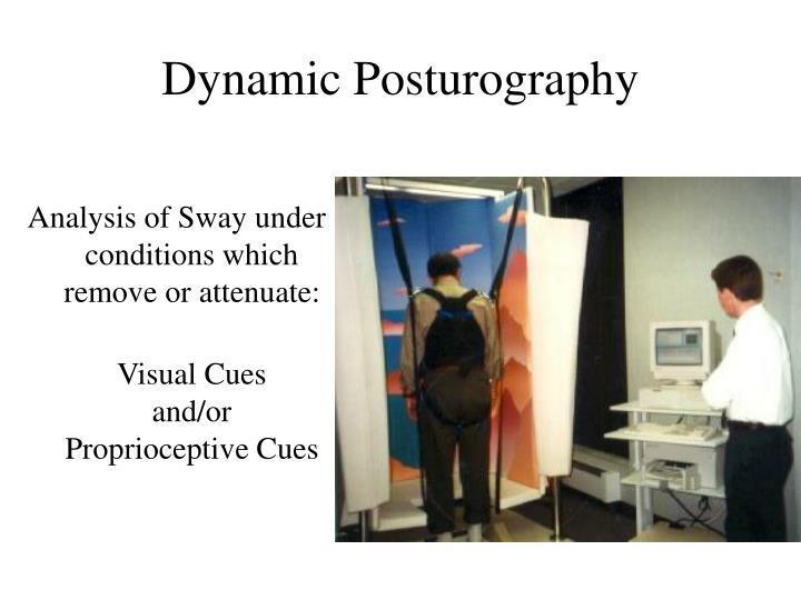 Dynamic Posturography