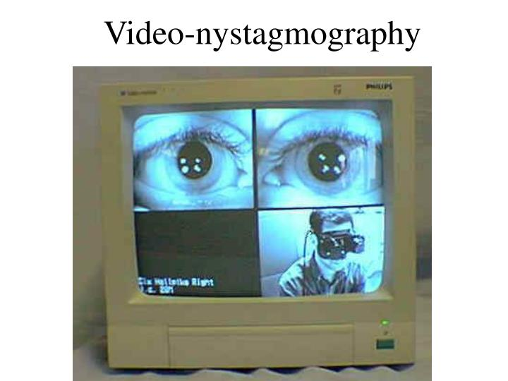 Video-nystagmography