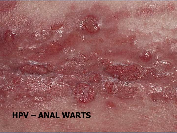 HPV – ANAL WARTS