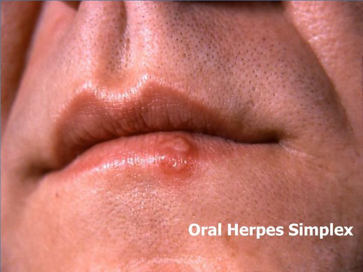 Oral Herpes Simplex