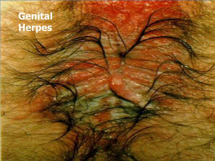 Genital Herpes