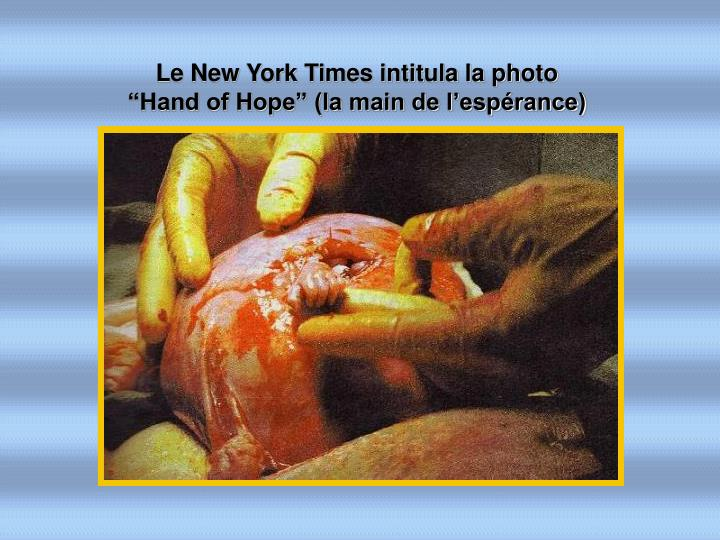 "Le New York Times intitula la photo            ""Hand of Hope"" (la main de l'espérance)"