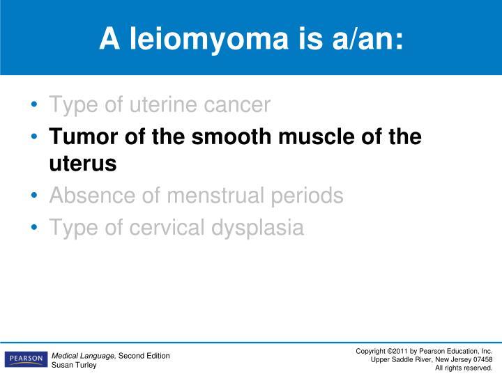 A leiomyoma is a/an: