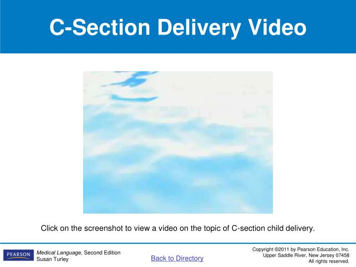 C-Section Delivery Video