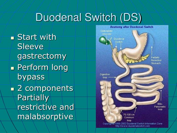Duodenal Switch (DS)