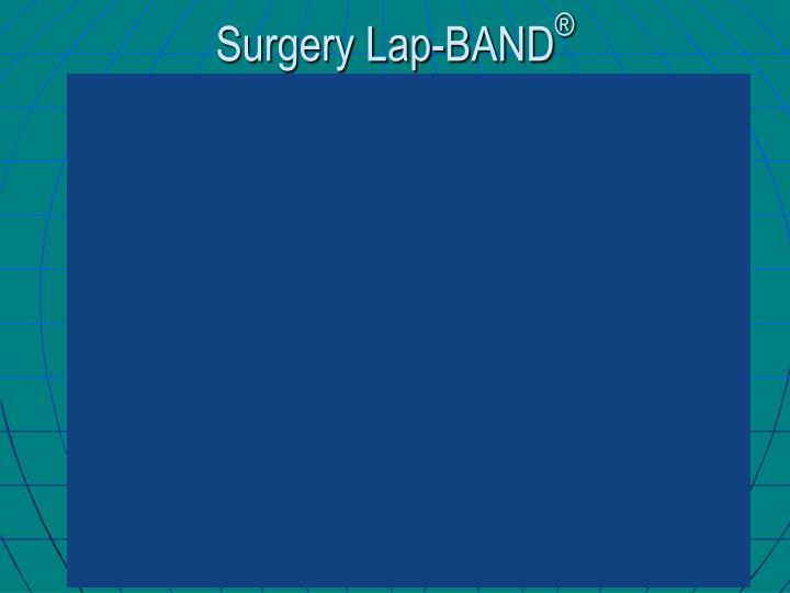 Surgery Lap-BAND