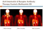 anti interleukin 6 receptor antibody therapy controls multicentric cd