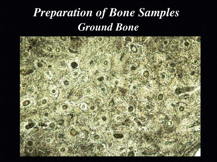 Preparation of Bone Samples