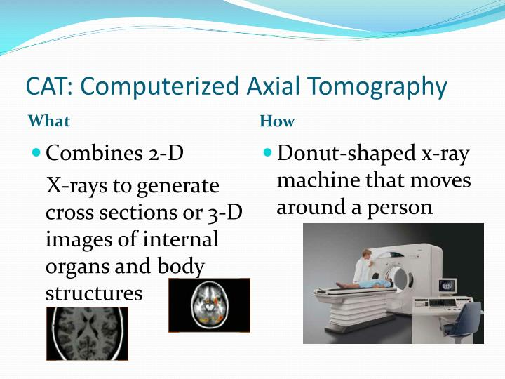 Cat computerized axial tomography